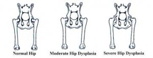 Diagram of Hip Dysplasia that will cause discomfort